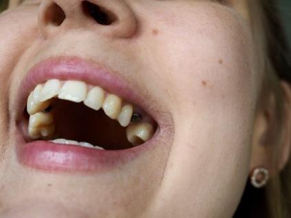 Hampaat murtuivat